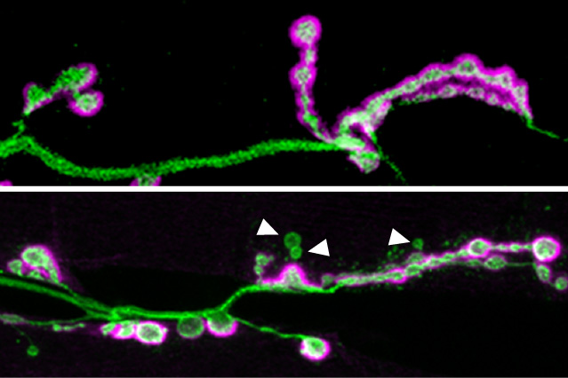 Loss of autism-linked gene prevents neuronal synapses from maturing